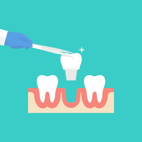 Do I Need Custom Dental Implant Abutments?